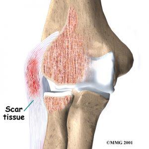 elbow Osteopath