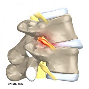 lumbar_low_back_pain_Kettering Osteopath