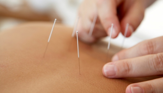 Acupuncture and Chinese Herbal Medicine in Kettering Northamptonshire