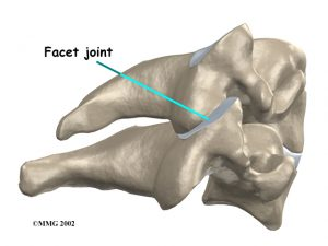 neck_pain. Kettering Osteopath